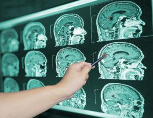 Traumatic Brain Injury Lawyer in Columbus, Ohio.